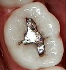 otturazione in amalgama d'argento