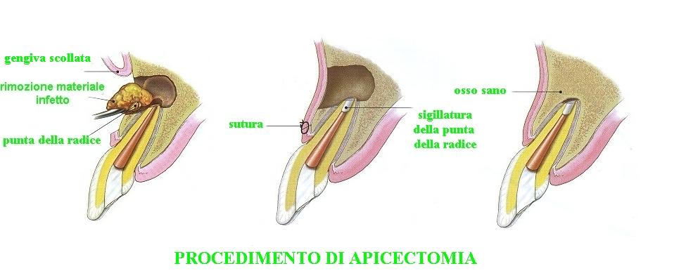 procedimento di apicectomia