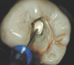 cemento endodontico