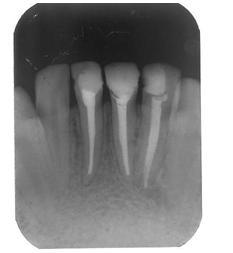 x ray denti trattati
